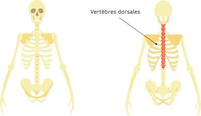 dorsalgie-définition